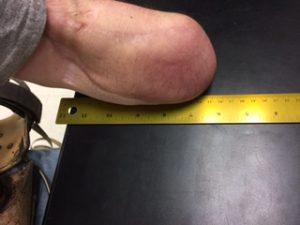 Measuring Jake's arm