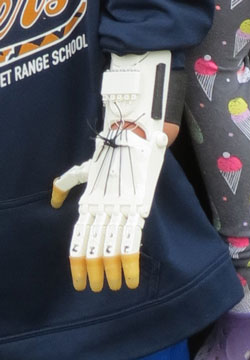 3D-printed hand close up